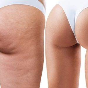 Treat Cellulite and Get Rid of Lumpy Skin without Any Pain