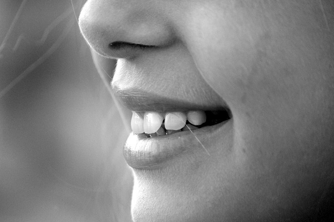 Teeth Whitening Sensitivity Causes and How to Avoid It