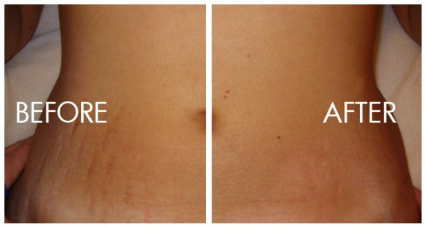 Fraxel Laser For Stretch Marks Is NOT Your Best Option!