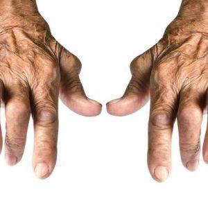 Steroids for Rheumatoid Arthritis