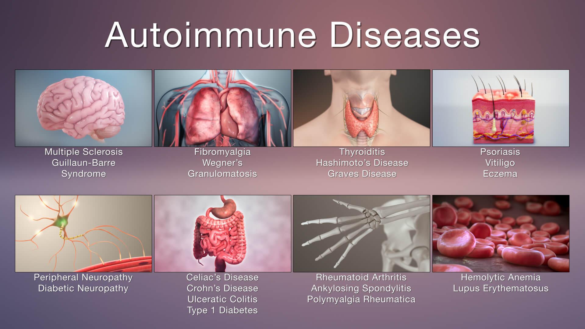 Types Of Autoimmune Diseases