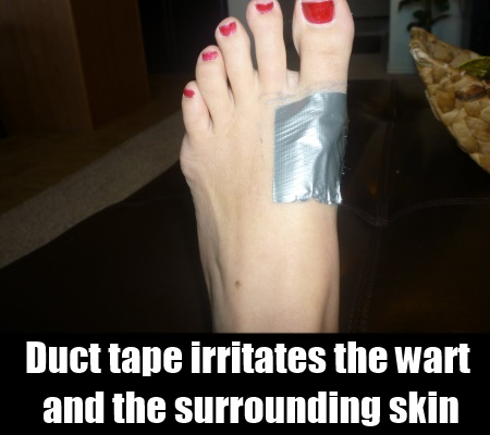 how to get rid of warts