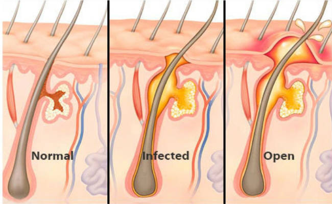 How To Get Rid Of Boils