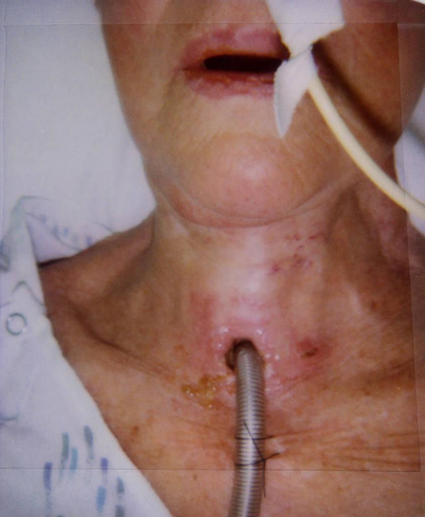 Laryngectomy Post Op Care