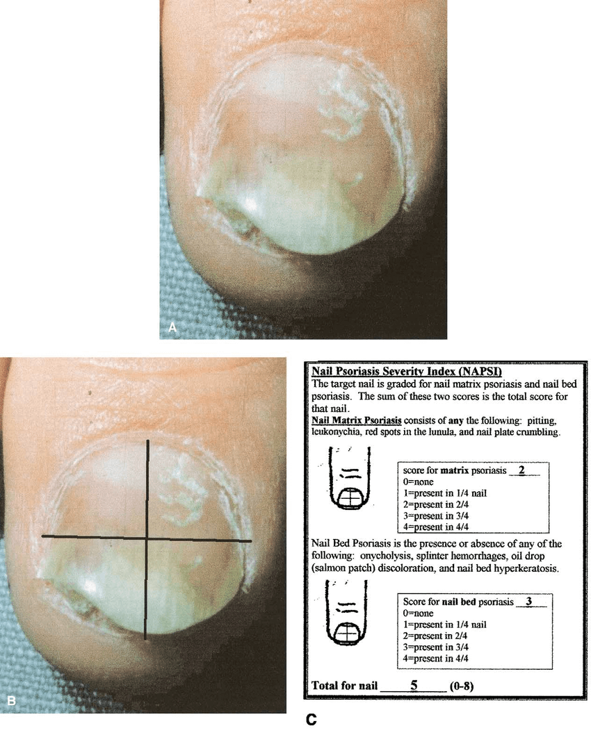 A, Photograph shows psoriatic nail for grading. B, The nail is divided into quadrants, and each quadrant is evaluated for nail matrix and nail bed psoriasis. C, Instruction and grading form for grading psoriatic nails with the Nail Psoriasis Severity Index (NAPSI) (NAPSI scoring for A and B).