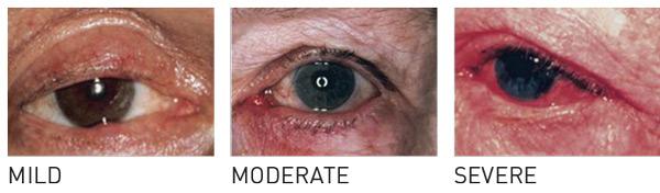 Ocular rosacea