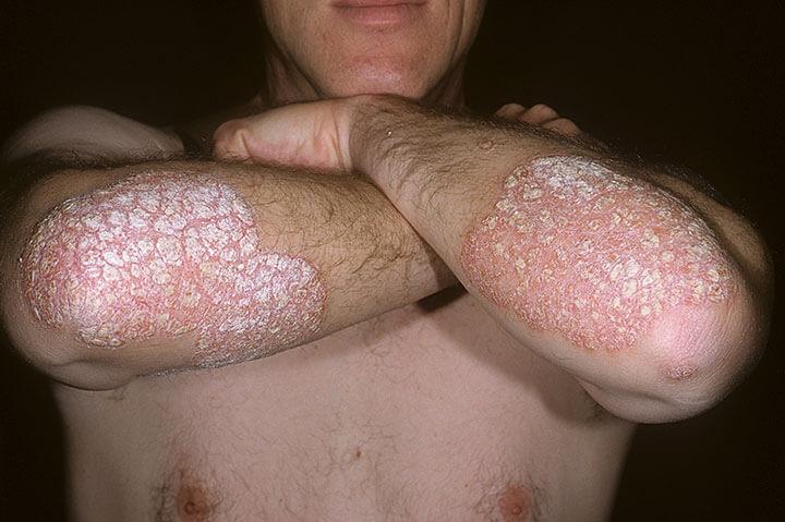 Picture of Plaque Psoriasis