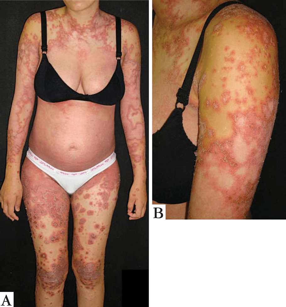 Pustular psoriasis of pregnancy (Impetigo herpetiformis)