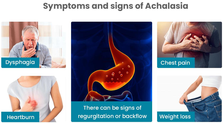 Symptoms Of Achalasia
