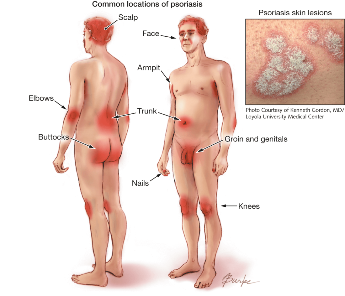 Areas on body typically affected by Psoriasis