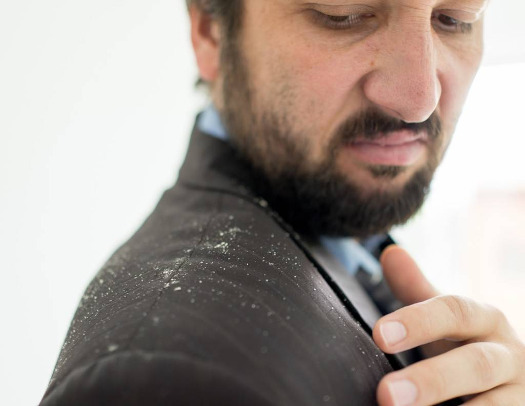 Get Rid Of Hair Scabs with Best Anti-Dandruff Shampoos