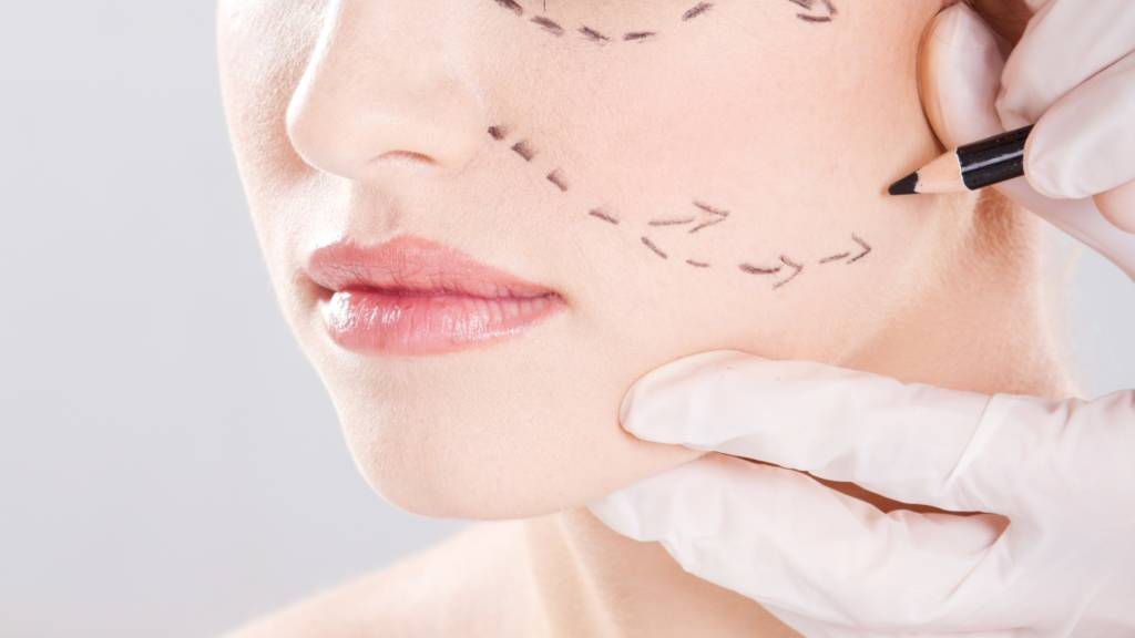 Secondary Facelift Surgery