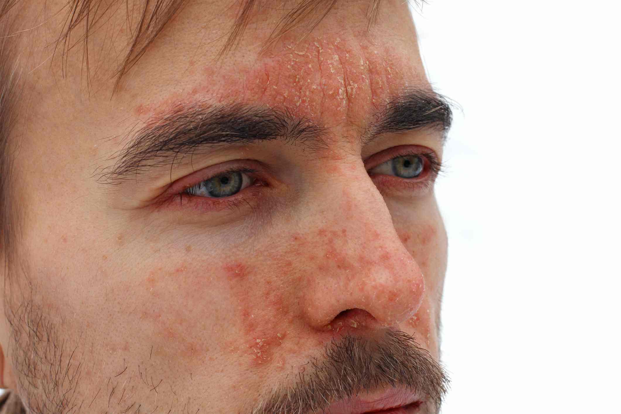 facial psoriasis