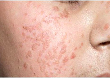 flat warts on face