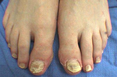 best treatment for toenail fungus