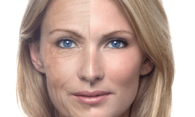 Best Face Wrinkle Treatment