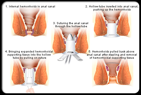 stapled hemorrhoidectomy