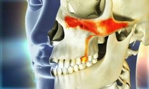 toothache from sinusitis